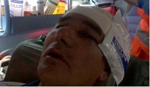 Pioltello: padre di famiglia vittima di un violento pestaggio