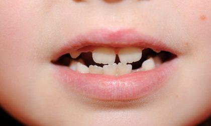 Ortodonzia infantile e prevenzione dentaria: cosa è importante sapere