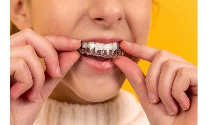 Impronta dentale digitale: i vantaggi in odontoiatria