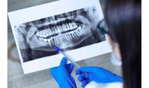 Implantologia: come misurare la stabilità dell'impianto